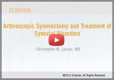 Arthroscopic Synovectomy